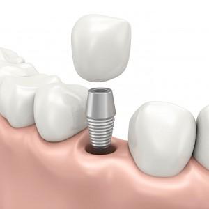 CasaDental_Services_DentalImplants_1386px_002